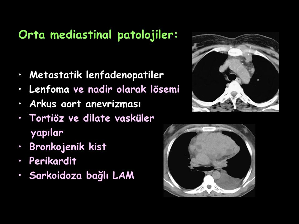 Orta mediastinal patolojiler: Metastatik lenfadenopatiler Lenfoma ve nadir olarak lösemi Arkus aort anevrizması Tortiöz ve dilate vasküler yapılar Bro