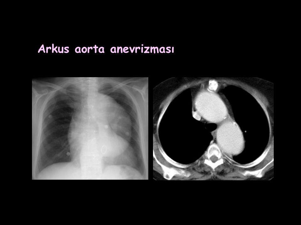 Arkus aorta anevrizması