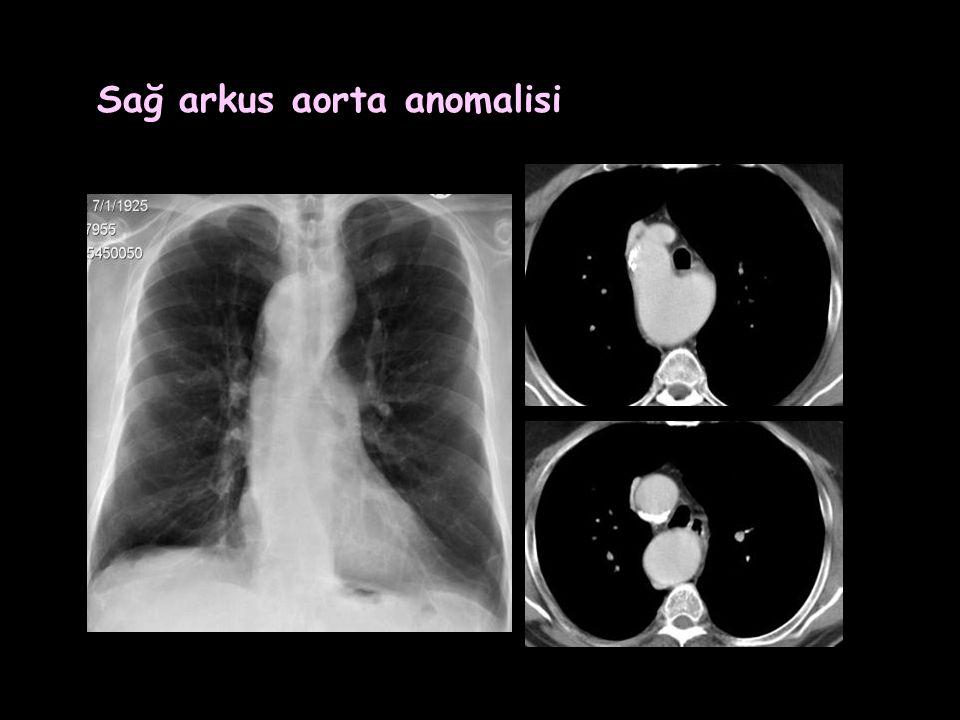 Sağ arkus aorta anomalisi