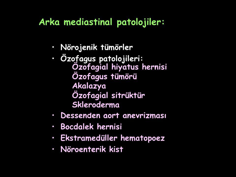 Arka mediastinal patolojiler: Nörojenik tümörler Özofagus patolojileri: Dessenden aort anevrizması Bocdalek hernisi Ekstramedüller hematopoez Nöroente