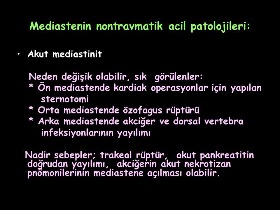Mediastenin nontravmatik acil patolojileri: Akut mediastinit Neden değişik olabilir, sık görülenler: * Ön mediastende kardiak operasyonlar için yapıla