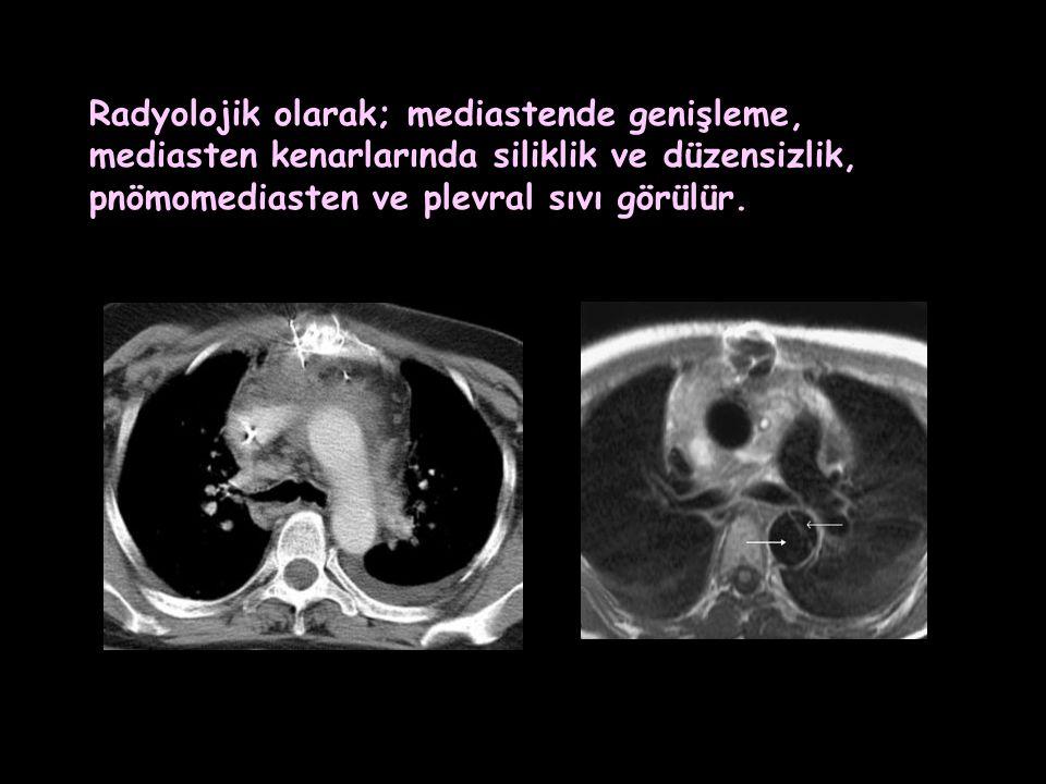 Radyolojik olarak; mediastende genişleme, mediasten kenarlarında siliklik ve düzensizlik, pnömomediasten ve plevral sıvı görülür.
