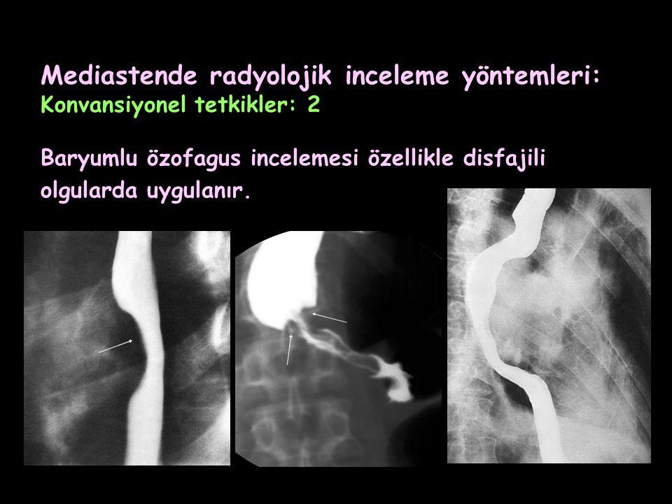 Mediastende radyolojik inceleme yöntemleri: Konvansiyonel tetkikler: 2 Baryumlu özofagus incelemesi özellikle disfajili olgularda uygulanır.