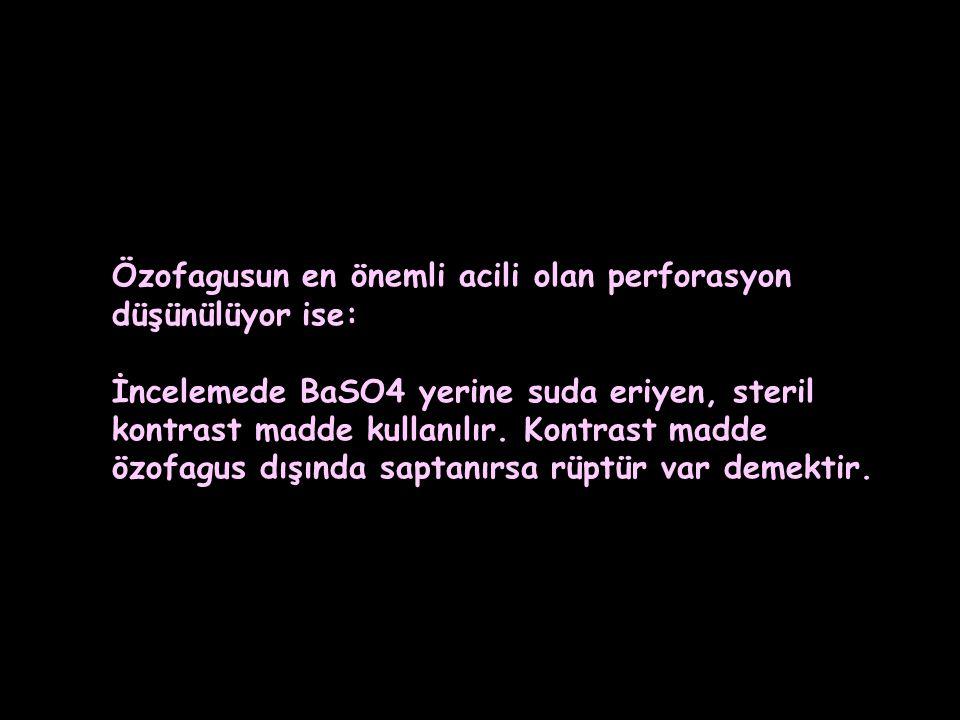 Özofagusun en önemli acili olan perforasyon düşünülüyor ise: İncelemede BaSO4 yerine suda eriyen, steril kontrast madde kullanılır. Kontrast madde özo