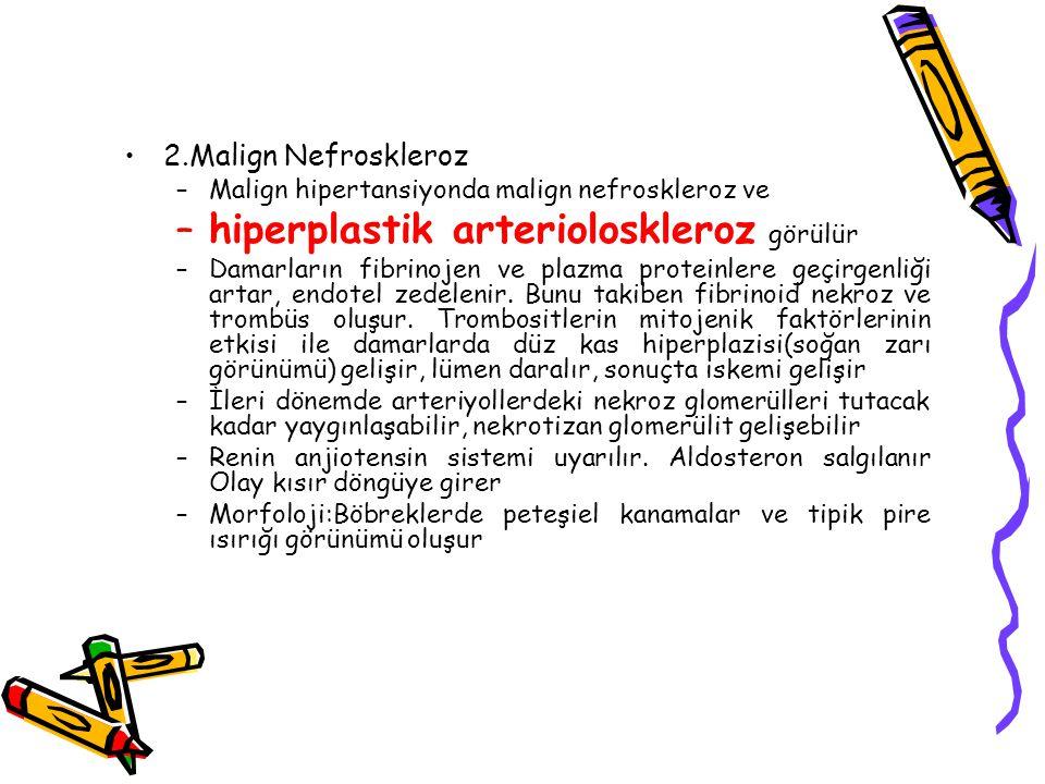 2.Malign Nefroskleroz –Malign hipertansiyonda malign nefroskleroz ve –hiperplastik arterioloskleroz görülür –Damarların fibrinojen ve plazma proteinle