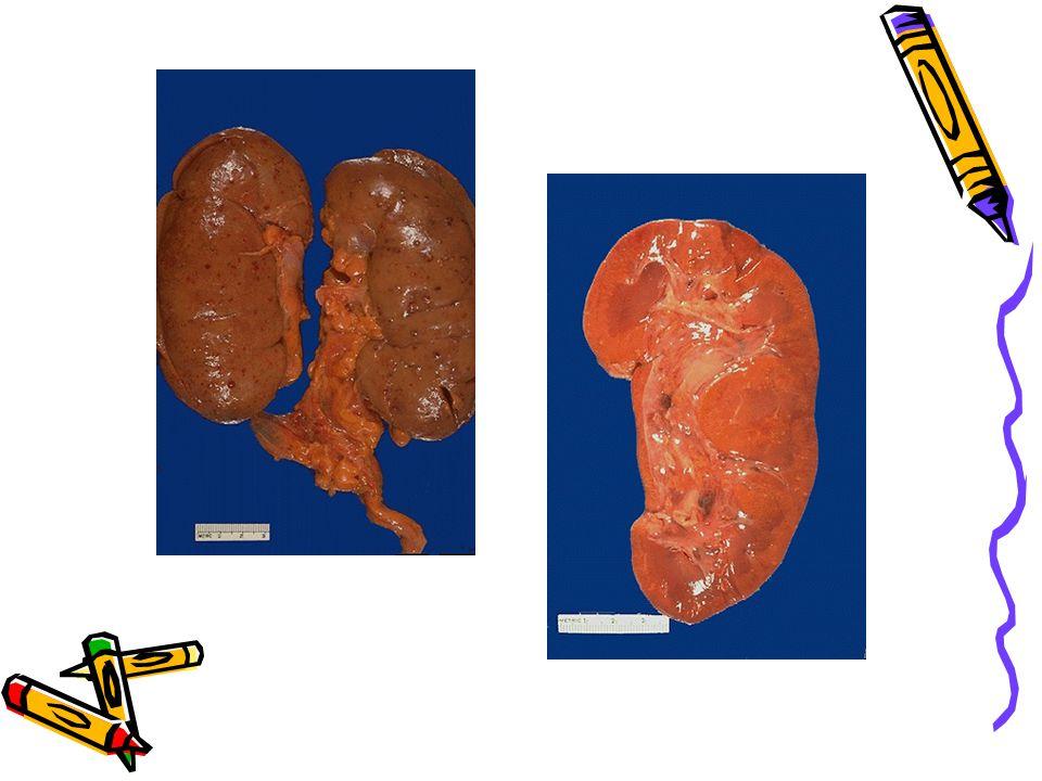 İskemik ATN –Kısa segment nekrozu, bazal membran rüptürü (tubuloreksis), proteinöz silendirler Toksik ATN –Nekroz proksimal tubulusda en fazladır.