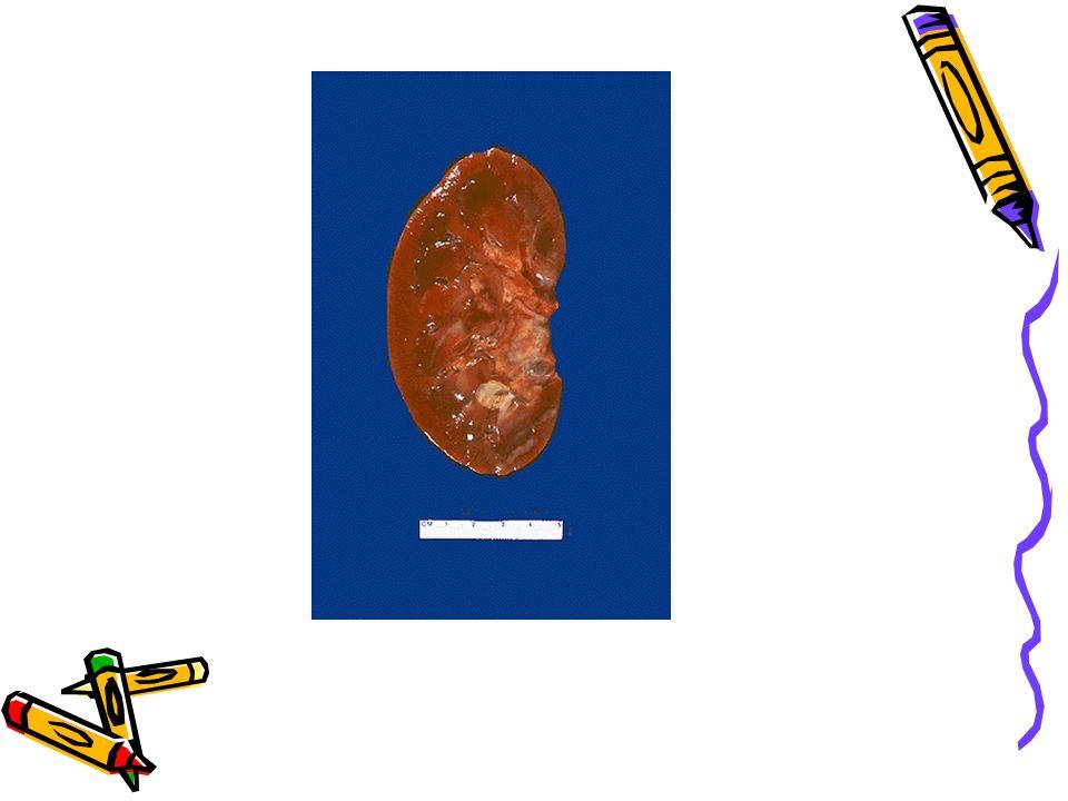Malign nefroskleroz. Fokal küçük hemorajiler. Kan basıncı 300/150mmHg gibi çok yüksek olduğunda…
