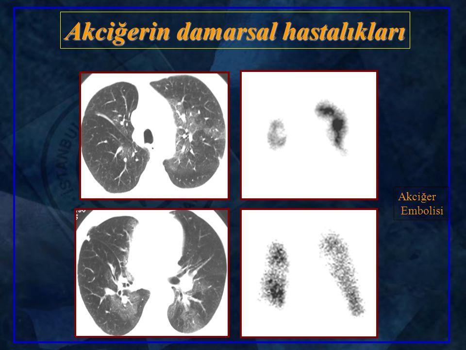 Akciğerin damarsal hastalıkları Akciğer Embolisi