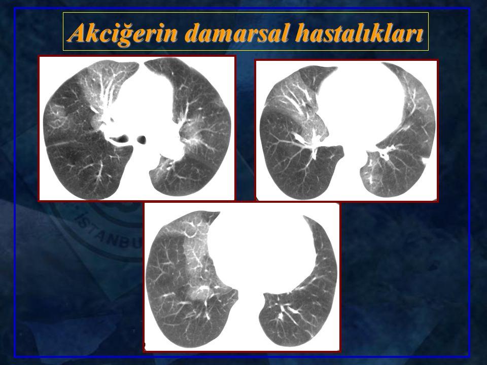 Akciğerin damarsal hastalıkları