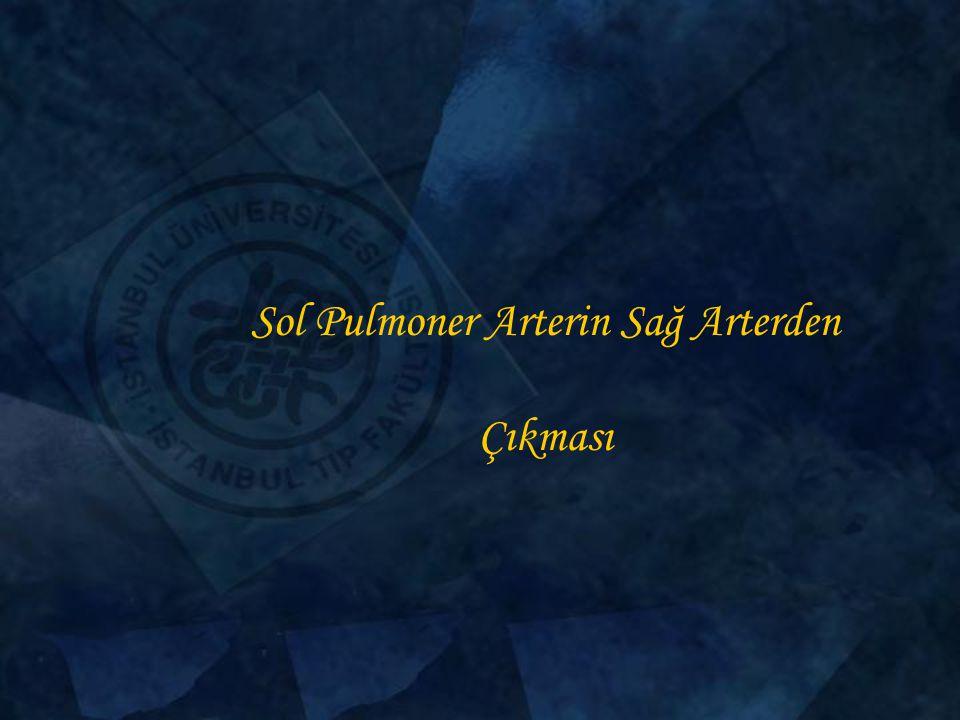 Sol Pulmoner Arterin Sağ Arterden Çıkması