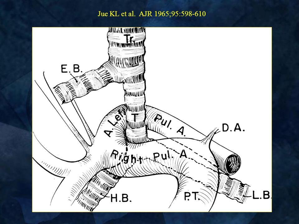 Jue KL et al. AJR 1965;95:598-610