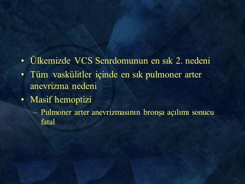 Ülkemizde VCS Senrdomunun en sık 2.