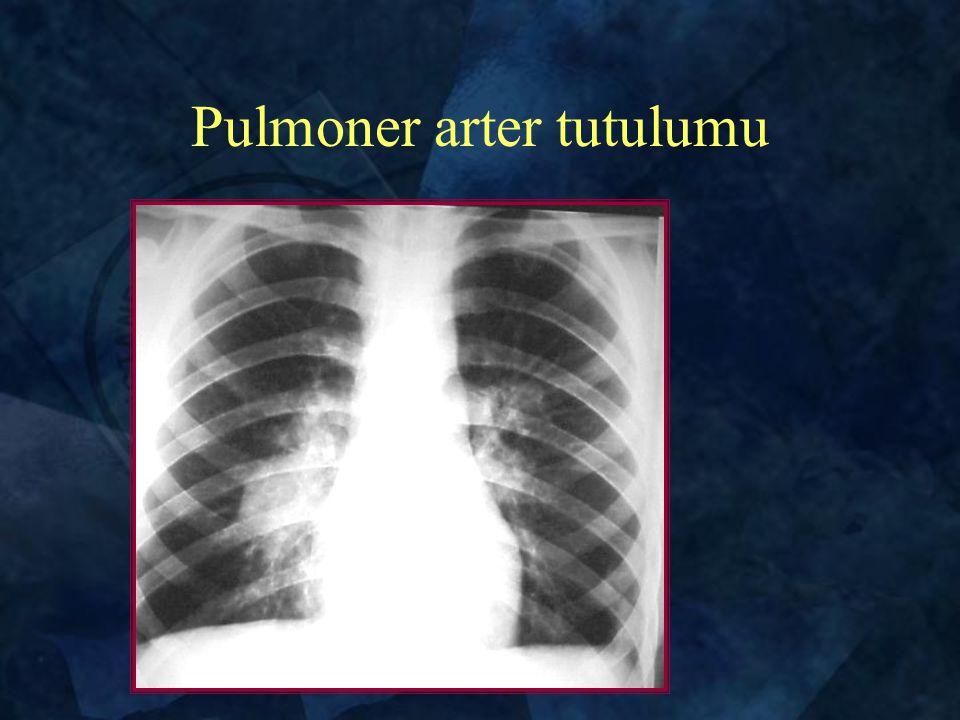 Pulmoner arter tutulumu