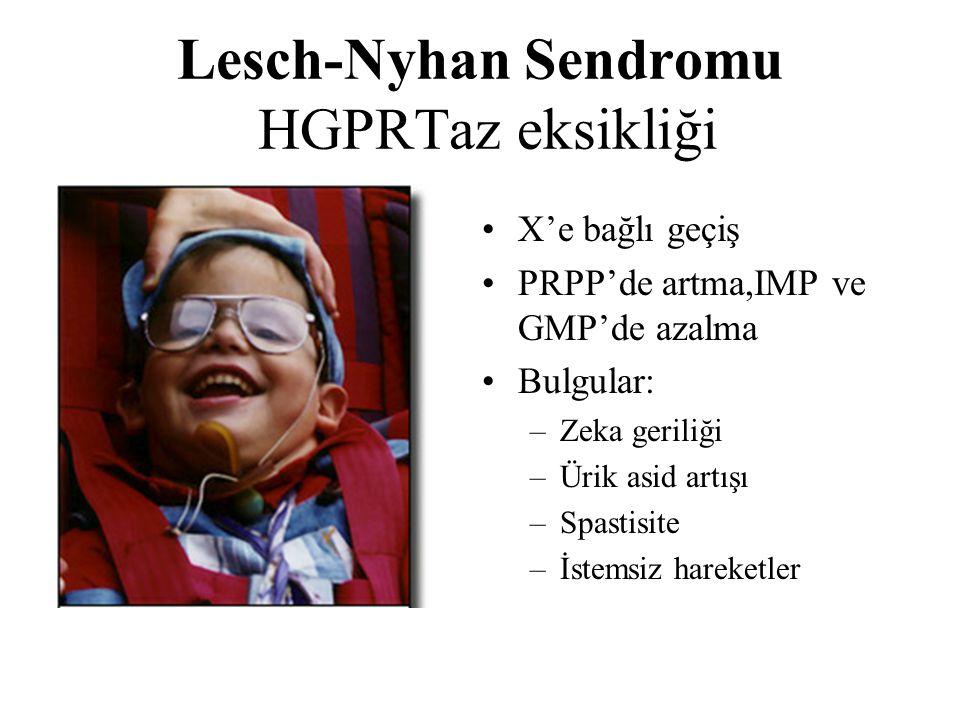 Lesch-Nyhan Sendromu HGPRTaz eksikliği X'e bağlı geçiş PRPP'de artma,IMP ve GMP'de azalma Bulgular: –Zeka geriliği –Ürik asid artışı –Spastisite –İste