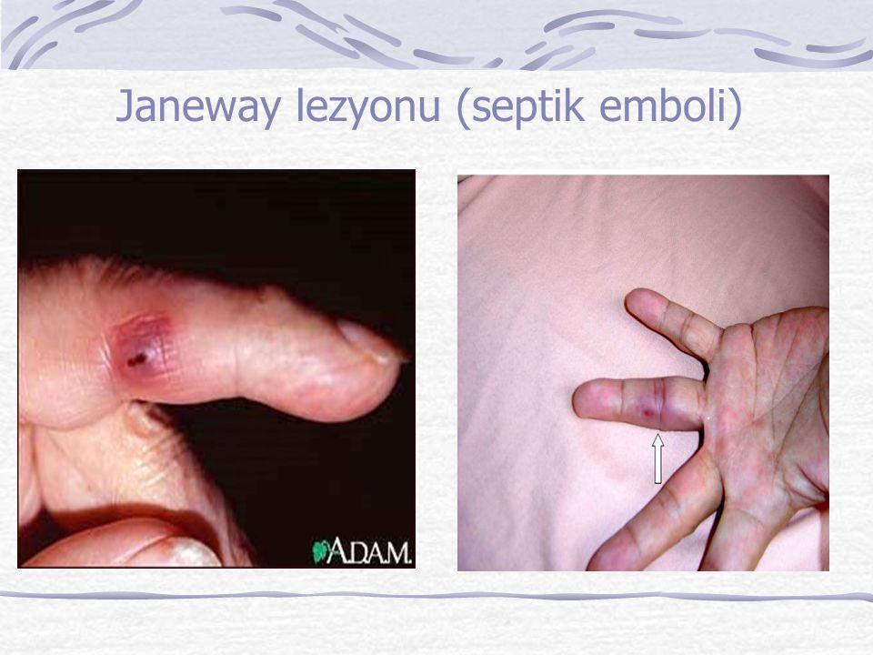Janeway lezyonu (septik emboli)