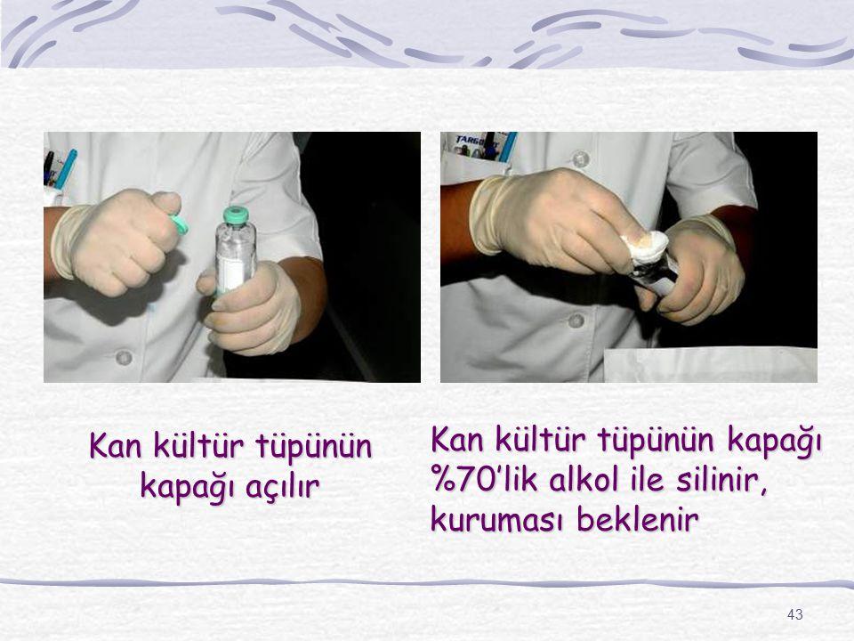 43 Kan kültür tüpünün kapağı açılır Kan kültür tüpünün kapağı %70'lik alkol ile silinir, kuruması beklenir