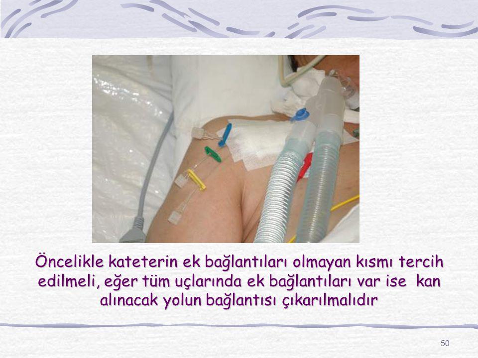 50 Öncelikle kateterin ek bağlantıları olmayan kısmı tercih edilmeli, eğer tüm uçlarında ek bağlantıları var ise kan alınacak yolun bağlantısı çıkarılmalıdır