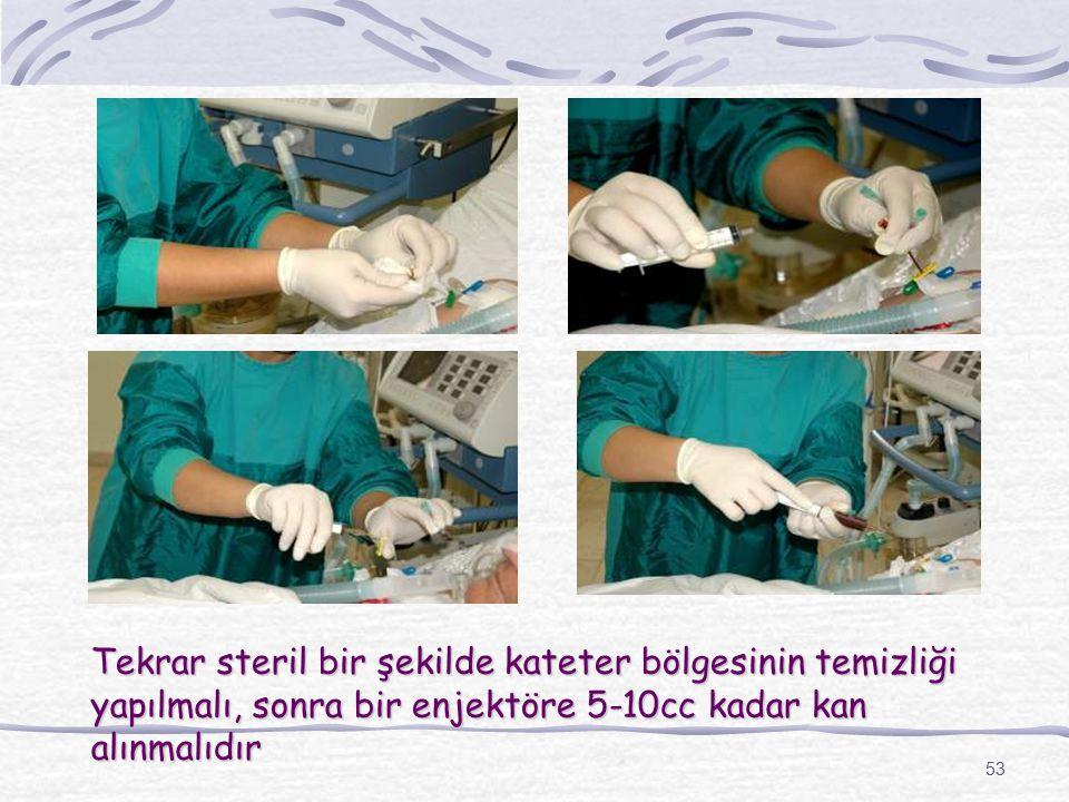 53 Tekrar steril bir şekilde kateter bölgesinin temizliği yapılmalı, sonra bir enjektöre 5-10cc kadar kan alınmalıdır
