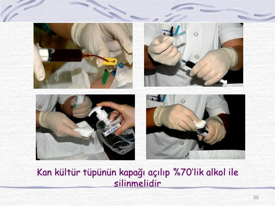55 Kan kültür tüpünün kapağı açılıp %70'lik alkol ile silinmelidir