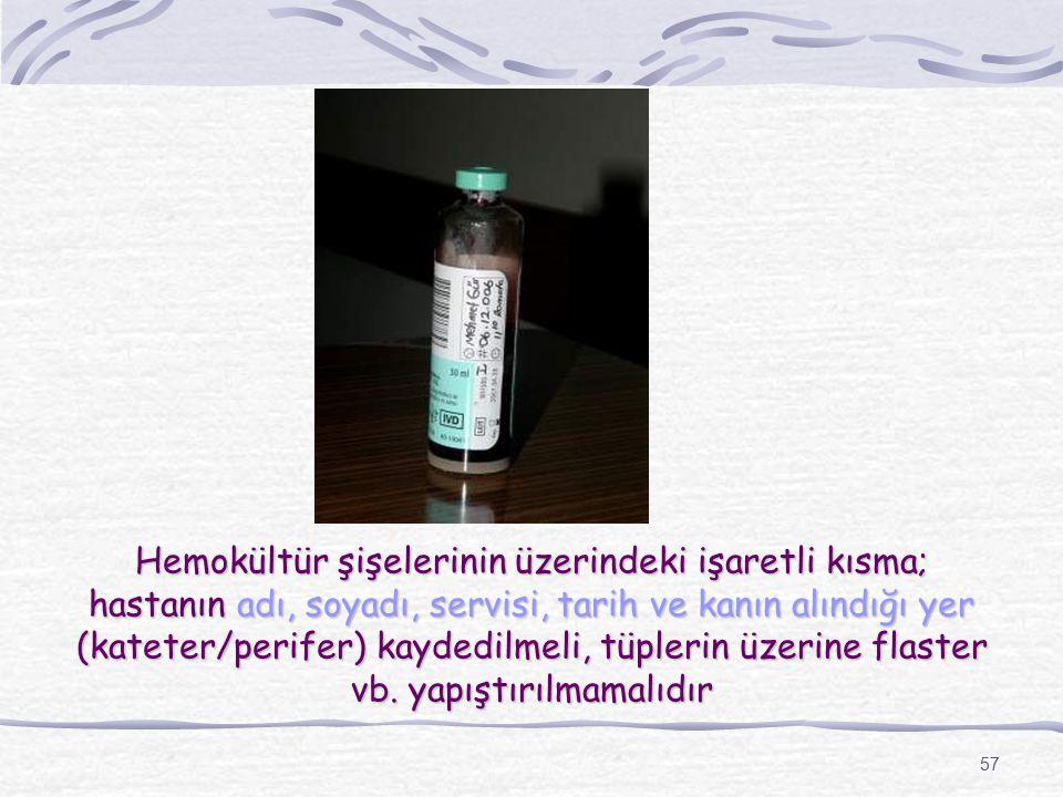 57 Hemokültür şişelerinin üzerindeki işaretli kısma; hastanın adı, soyadı, servisi, tarih ve kanın alındığı yer (kateter/perifer) kaydedilmeli, tüpler