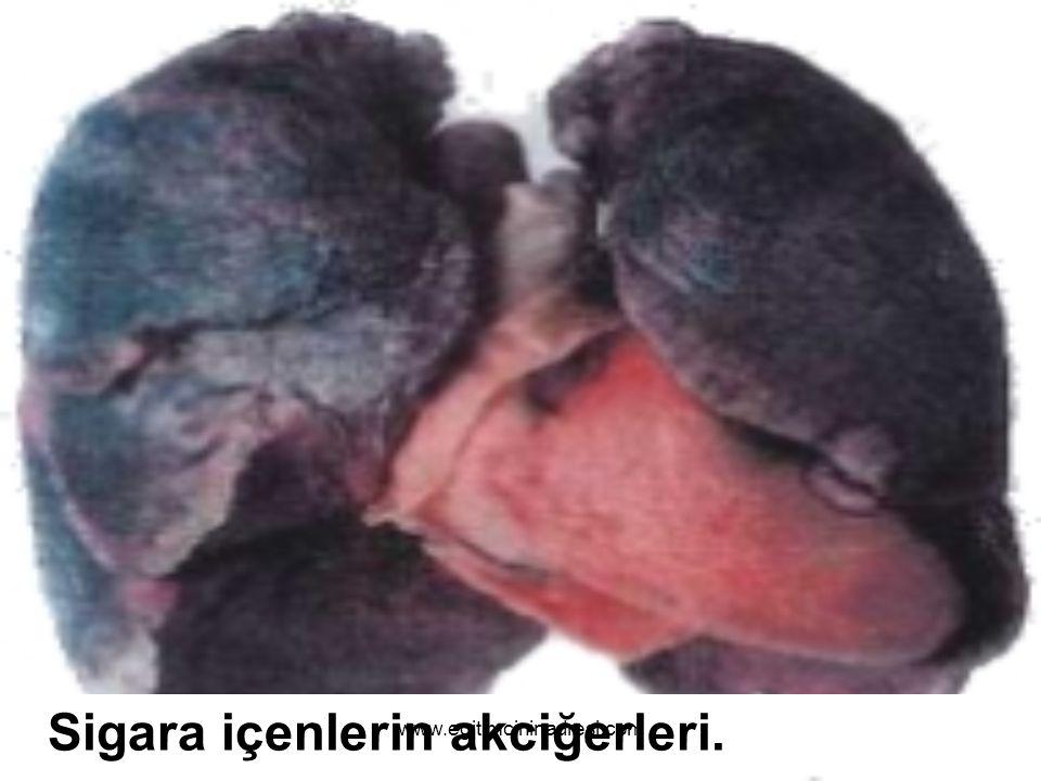 Sigara içmeyenlerin akciğerleri. www.egitimcininadresi.com