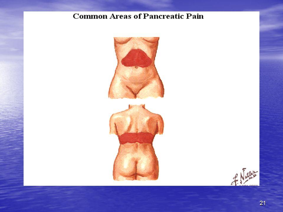 22 KLİNİK BULGULAR Akut pankreatitli hastaların %80 inde bulantı, kusma, lokalize veya generalize ileus bulunabilir.