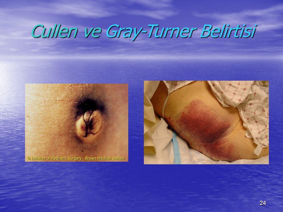 24 Cullen ve Gray-Turner Belirtisi