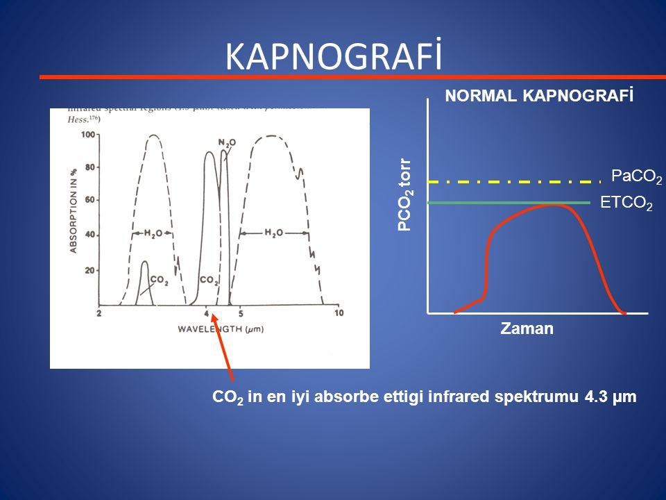 KAPNOGRAFİ CO 2 in en iyi absorbe ettigi infrared spektrumu 4.3 µm Zaman PCO 2 torr NORMAL KAPNOGRAFİ PaCO 2 ETCO 2