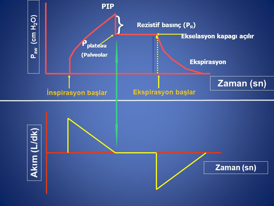 Ekspirasyon başlar ) P aw (cm H 2 O) Zaman (sn) İnspirasyon başlar PIP P plateau (Palveolar Rezistif basınç (P R ) } Ekselasyon kapagı açılır Ekspiras
