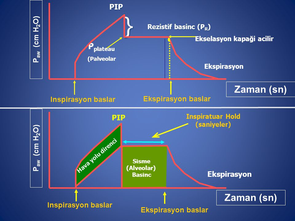Inspirasyon baslar Ekspirasyon baslar P aw (cm H 2 O) Zaman (sn) Hava yolu direnci Sisme (Alveolar) Basinc Ekspirasyon Inspiratuar Hold (saniyeler) PI