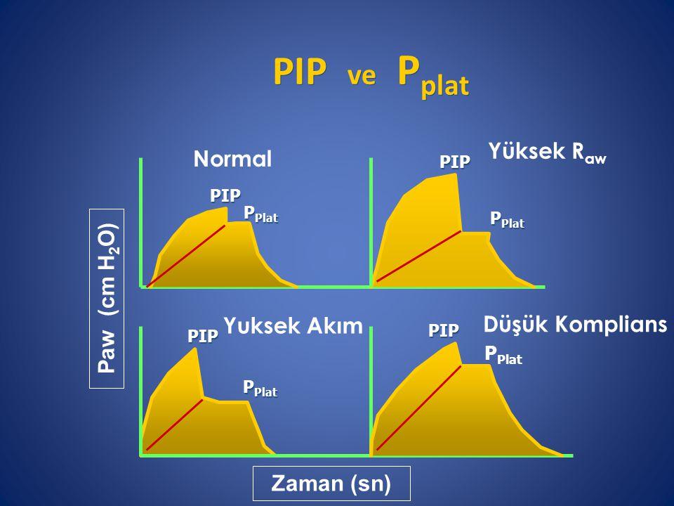 PIP ve P plat Normal Yüksek R aw Yuksek Akım Düşük Komplians Zaman (sn) Paw (cm H 2 O) PIP P Plat PIP PIP PIP
