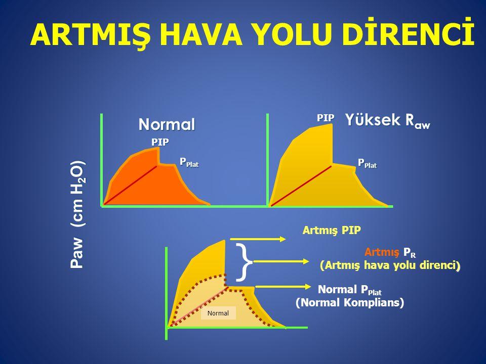 Paw (cm H 2 O) Normal Normal P Plat (Normal Komplians) Artmış PIP } Artmış P R ) (Artmış hava yolu direnci )NormalPIP P Plat Yüksek R aw PIP P Plat AR