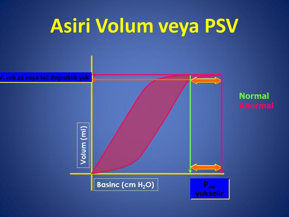 Asiri Volum veya PSV Volum (ml) Basinc (cm H 2 O) V T cok az veya hic degisiklik yok P aw yukselir Normal Anormal