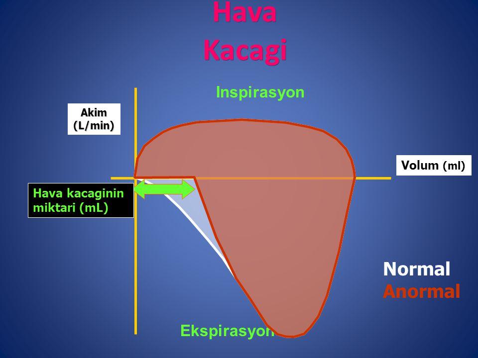 Hava Kacagi Inspirasyon Ekspirasyon Volum (ml) Akim(L/min) Hava kacaginin miktari (mL) Normal Anormal