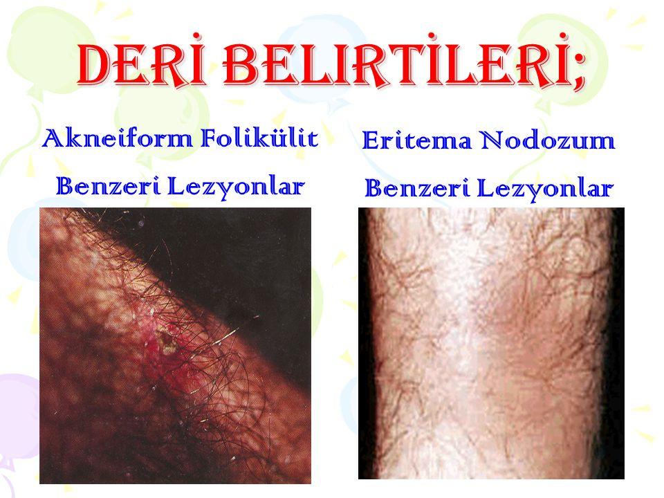 Deri belirtileri; Akneiform Folikülit Benzeri Lezyonlar Eritema Nodozum Benzeri Lezyonlar