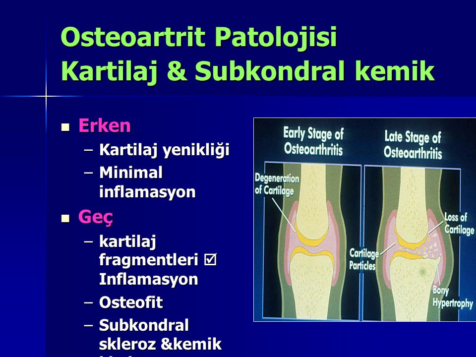 Osteoartrit Patolojisi Kartilaj & Subkondral kemik Erken Erken –Kartilaj yenikliği –Minimal inflamasyon Geç Geç –kartilaj fragmentleri  Inflamasyon –