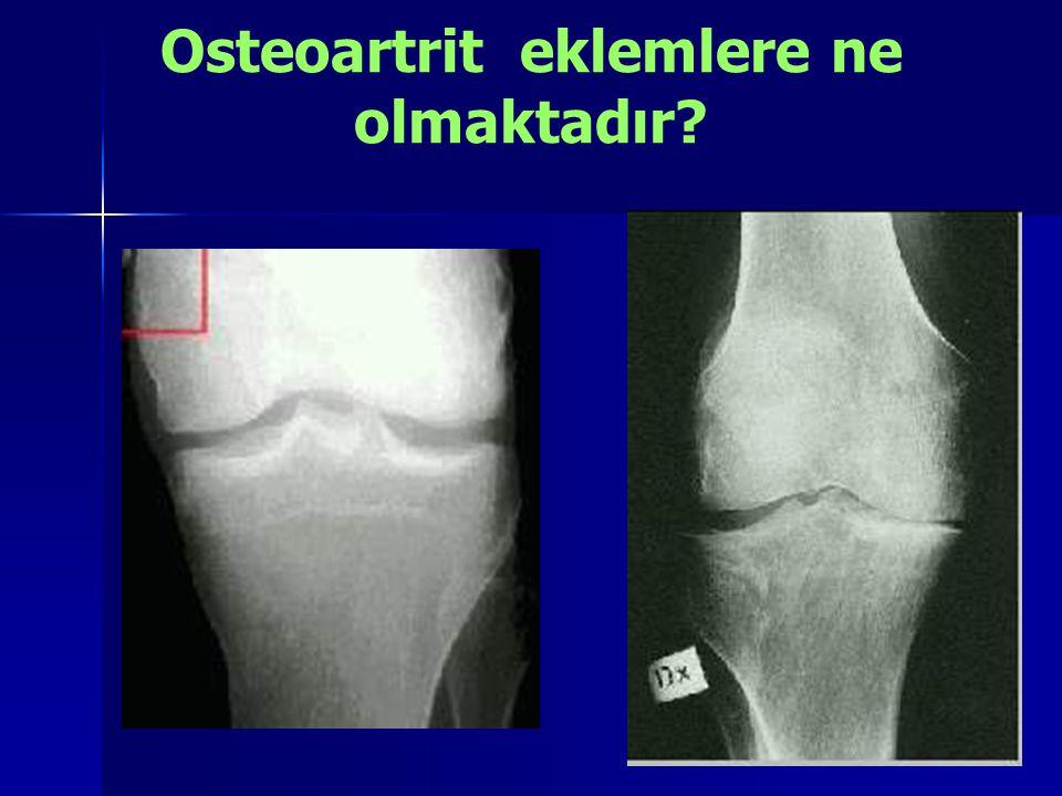 Osteoartrit eklemlere ne olmaktadır?