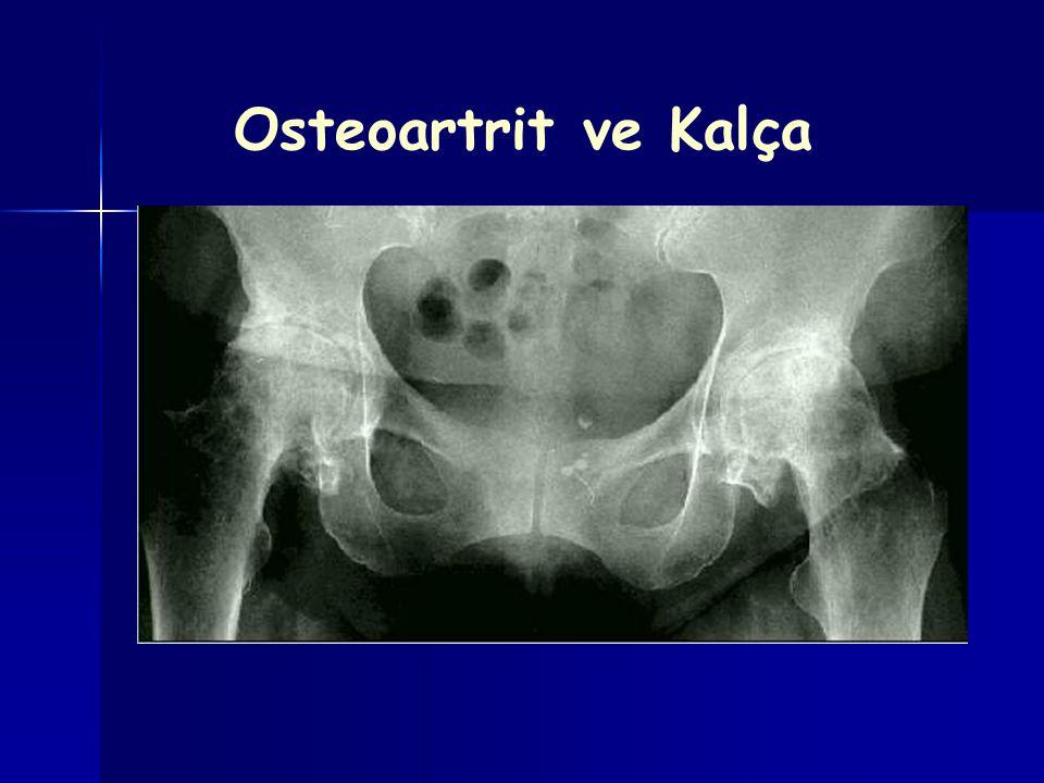 Osteoartrit ve Kalça