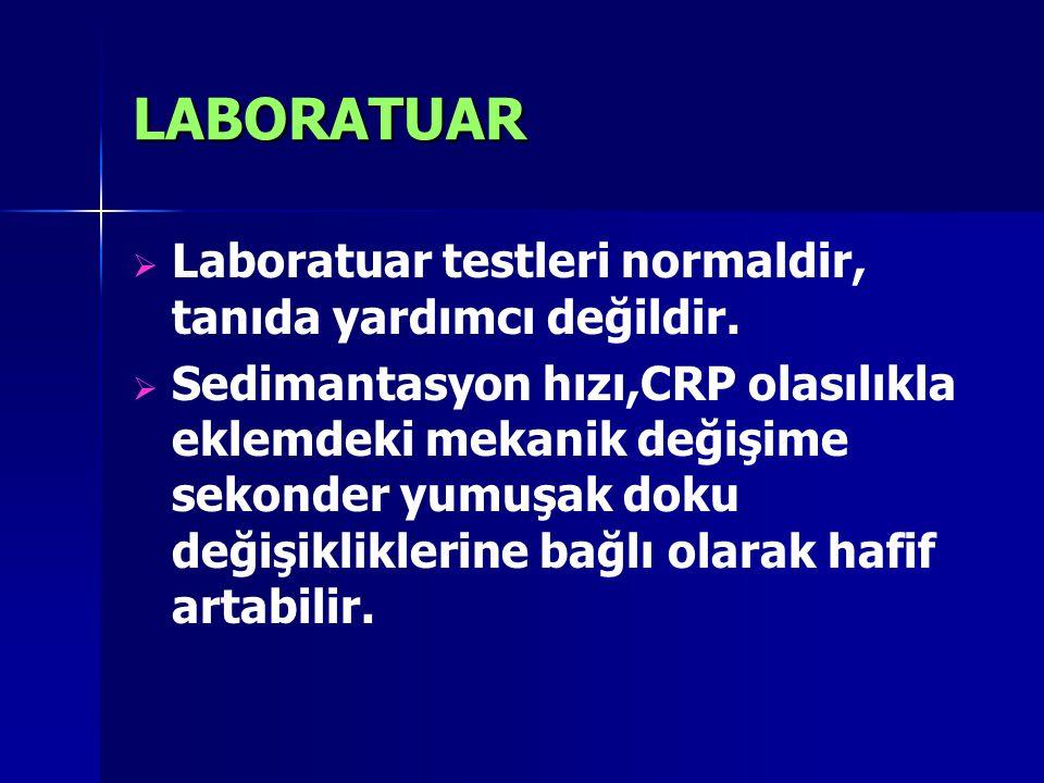 LABORATUAR   Laboratuar testleri normaldir, tanıda yardımcı değildir.   Sedimantasyon hızı,CRP olasılıkla eklemdeki mekanik değişime sekonder yumu