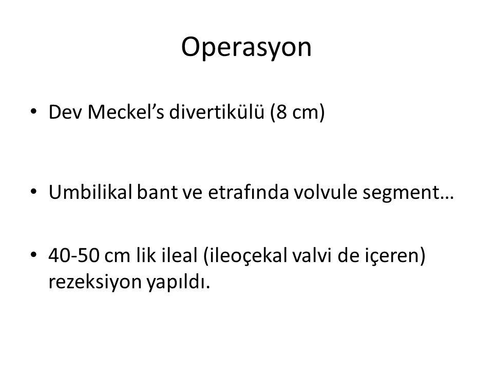 Operasyon Dev Meckel's divertikülü (8 cm) Umbilikal bant ve etrafında volvule segment… 40-50 cm lik ileal (ileoçekal valvi de içeren) rezeksiyon yapıldı.