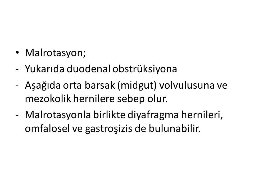 Malrotasyon; -Yukarıda duodenal obstrüksiyona -Aşağıda orta barsak (midgut) volvulusuna ve mezokolik hernilere sebep olur.