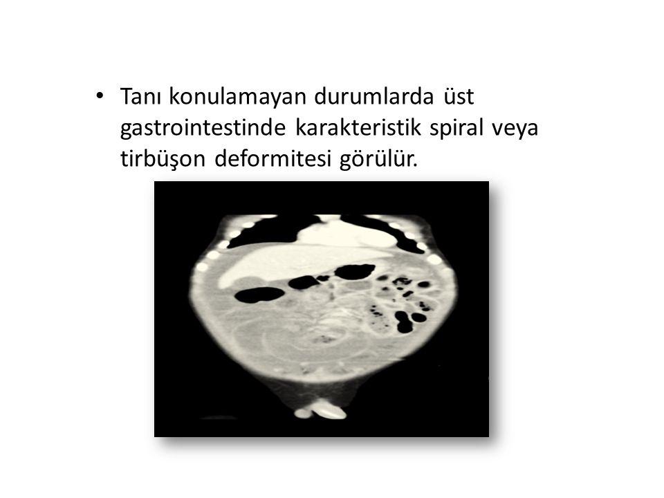 Tanı konulamayan durumlarda üst gastrointestinde karakteristik spiral veya tirbüşon deformitesi görülür.
