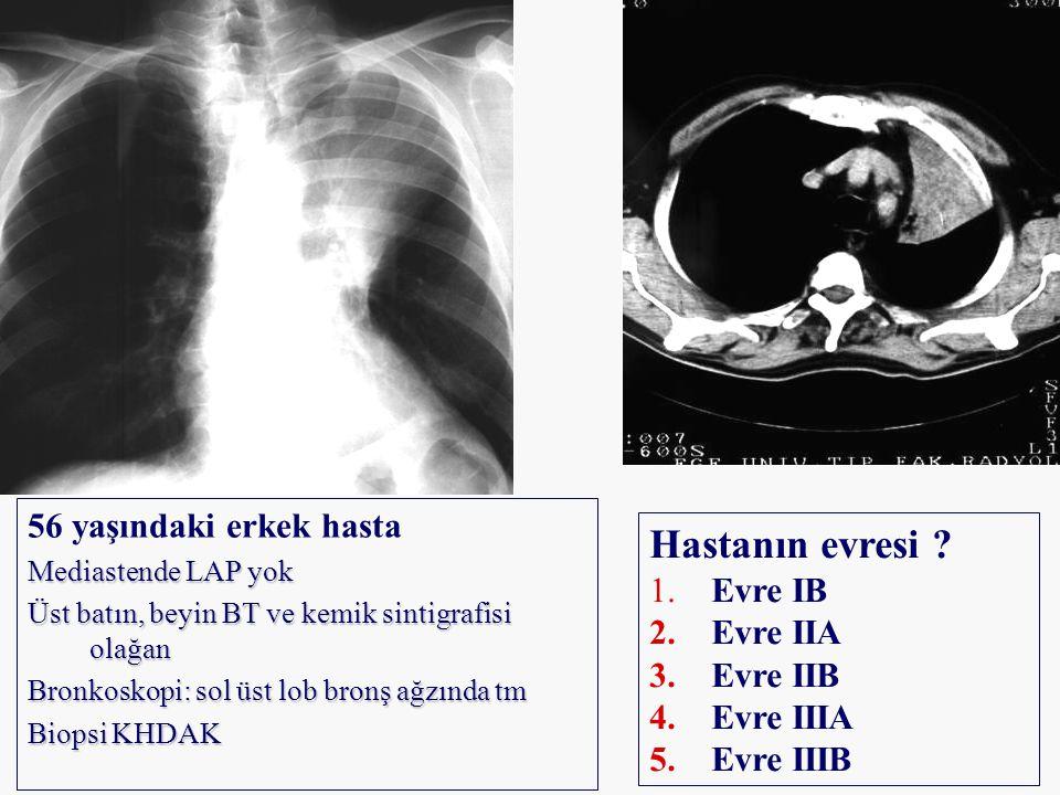 56 yaşındaki erkek hasta Mediastende LAP yok Üst batın, beyin BT ve kemik sintigrafisi olağan Bronkoskopi: sol üst lob bronş ağzında tm Biopsi KHDAK H