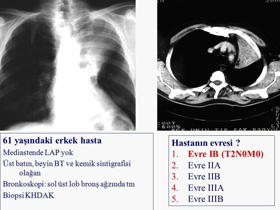61 yaşındaki erkek hasta Mediastende LAP yok Üst batın, beyin BT ve kemik sintigrafisi olağan Bronkoskopi: sol üst lob bronş ağzında tm Biopsi KHDAK H