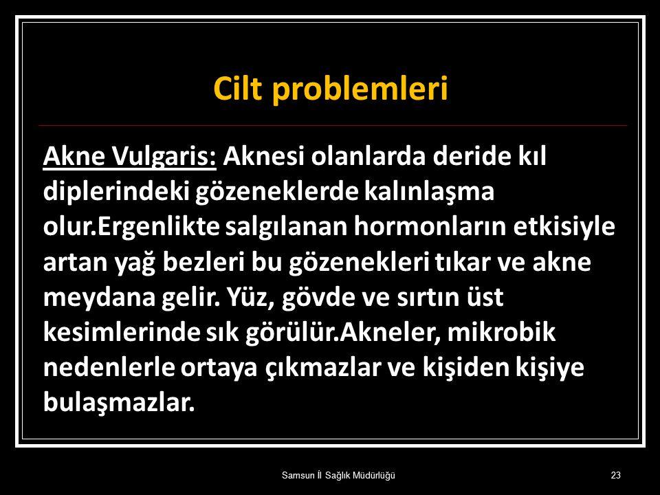 Cilt problemleri Akne Vulgaris: Aknesi olanlarda deride kıl diplerindeki gözeneklerde kalınlaşma olur.Ergenlikte salgılanan hormonların etkisiyle arta