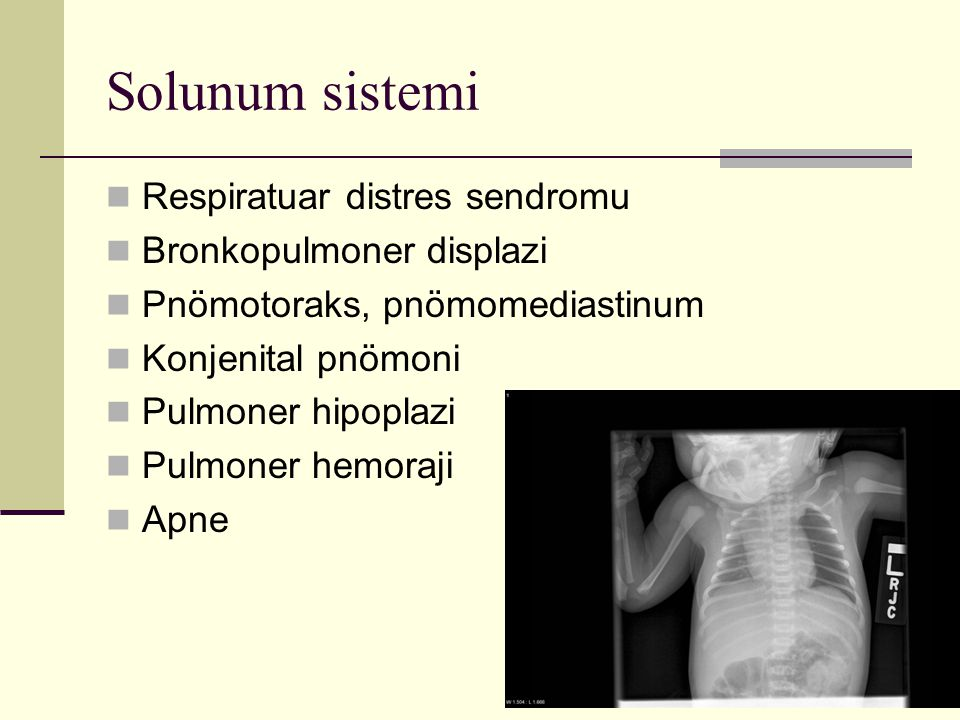Solunum sistemi Respiratuar distres sendromu Bronkopulmoner displazi Pnömotoraks, pnömomediastinum Konjenital pnömoni Pulmoner hipoplazi Pulmoner hemo