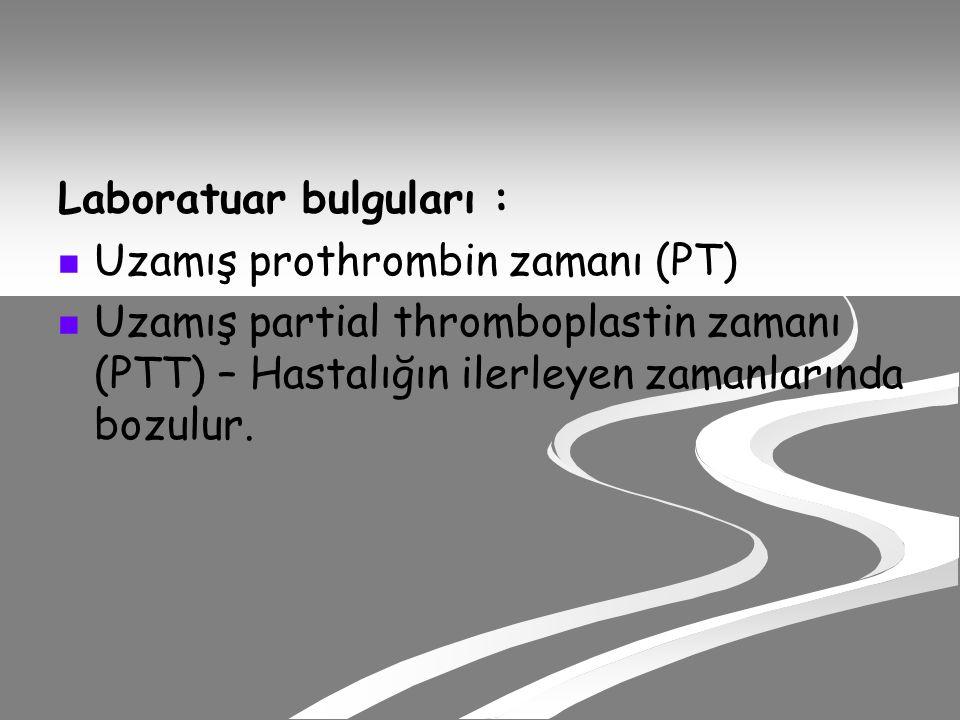 Laboratuar bulguları : Uzamış prothrombin zamanı (PT) Uzamış partial thromboplastin zamanı (PTT) – Hastalığın ilerleyen zamanlarında bozulur.