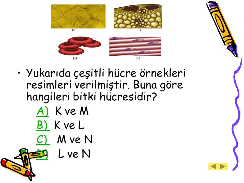 Yukarıda çeşitli hücre örnekleri resimleri verilmiştir. Buna göre hangileri bitki hücresidir? A) K ve M A) B) K ve L B) C) M ve N C) D) L ve ND)