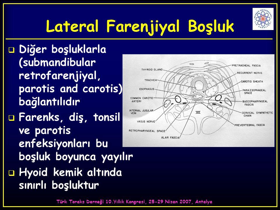 Türk Toraks Derneği 10.Yıllık Kongresi, 25-29 Nisan 2007, Antalya Lateral Farenjiyal Boşluk  Diğer boşluklarla (submandibular retrofarenjiyal, parotis and carotis) bağlantılıdır  Farenks, diş, tonsil ve parotis enfeksiyonları bu boşluk boyunca yayılır  Hyoid kemik altında sınırlı boşluktur