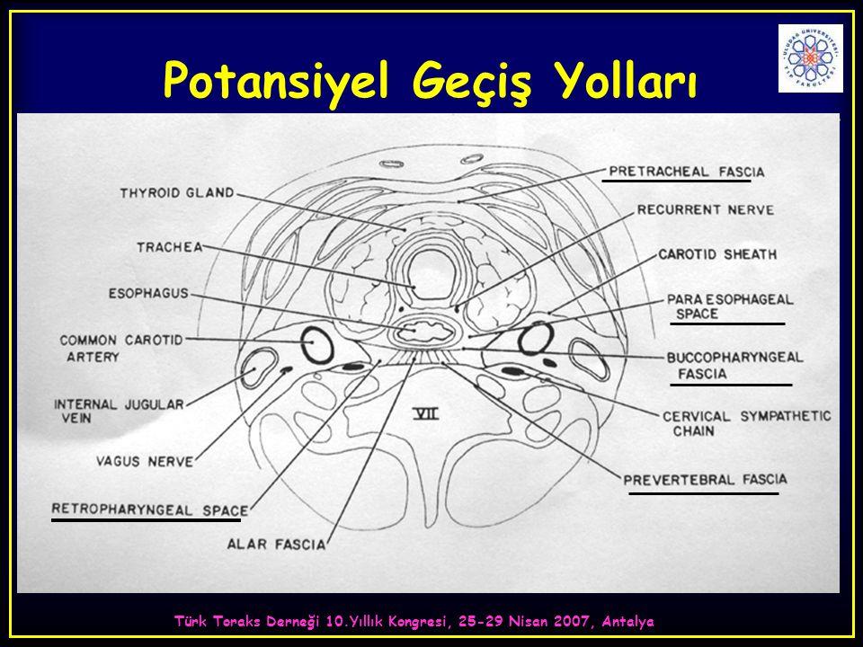 Türk Toraks Derneği 10.Yıllık Kongresi, 25-29 Nisan 2007, Antalya Potansiyel Geçiş Yolları